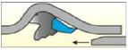 Позиция на уплътнението преди подлагането на тръбата